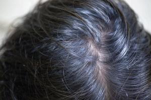 インディゴ施述後24時間たった、白髪は浮いているが青っぽい